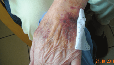 Elderly Skin Photo